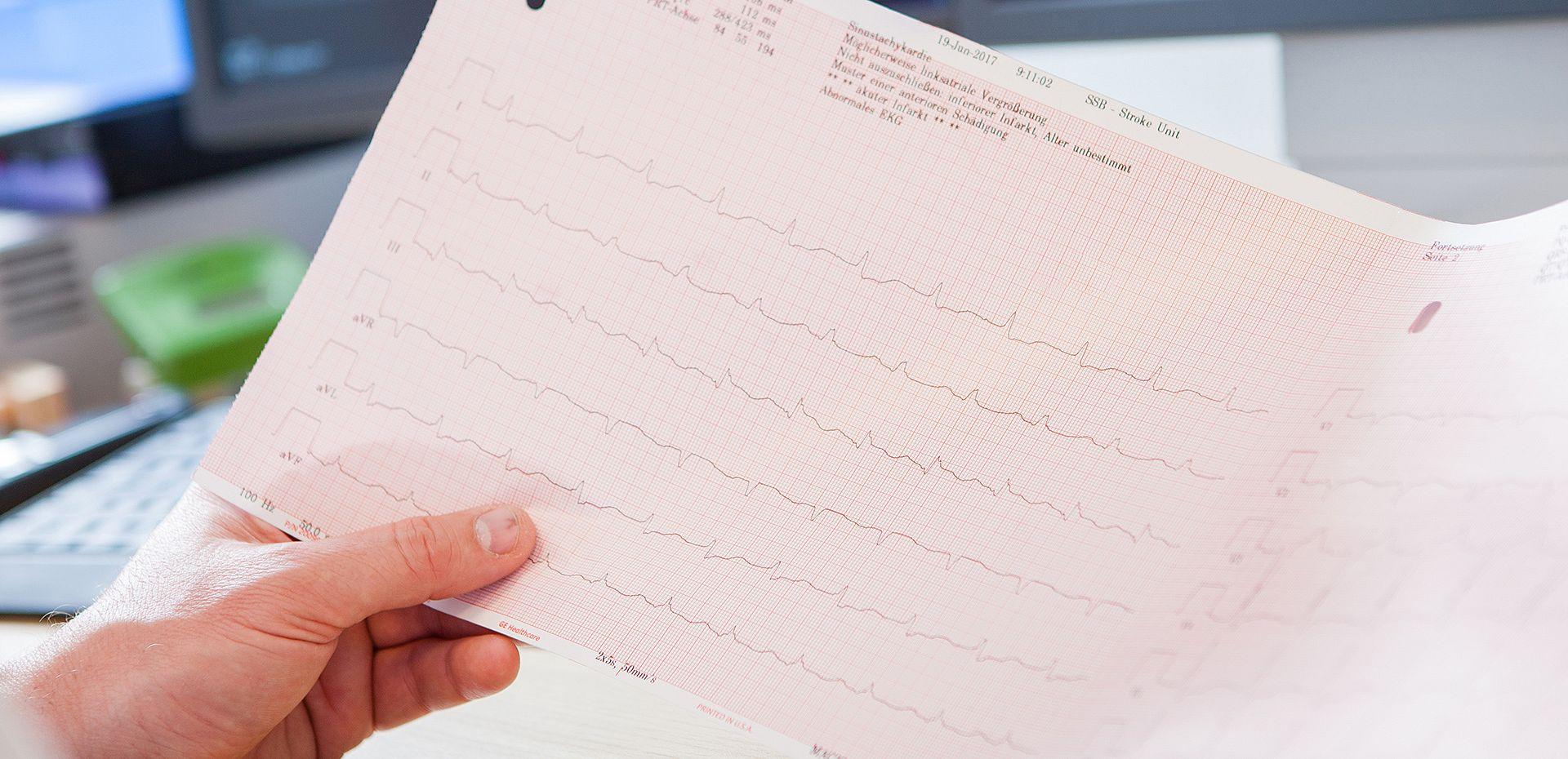 Invasive Elektrophysiologie | Sozialstiftung Bamberg