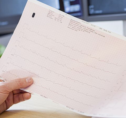 EKG Auswertung